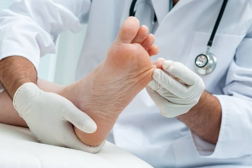 diabeticfoot - 6 Tips to Protect Your Feet While Exercising