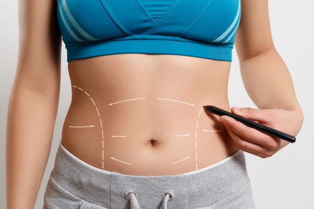woman shows dotted - Getting Ready for Your Tummy Tuck